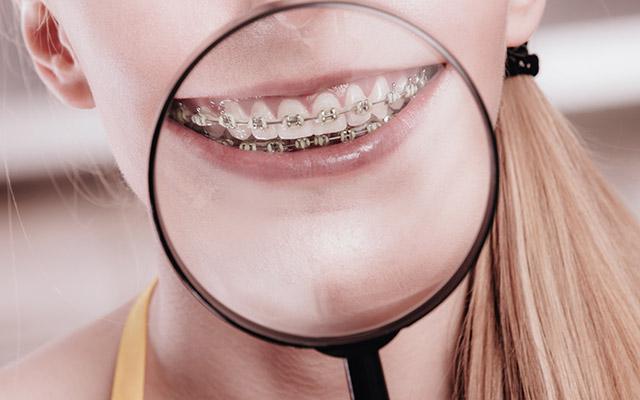 Aparat za zobe - zvezdice